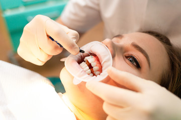 Close-up portrait woman patient with cheek retractor lies on the dental chair during the procedure  Wall mural