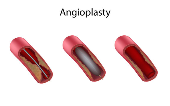 Ballon angioplasty stages. Atherosclerosis plaques. Medical anatomy illustration.