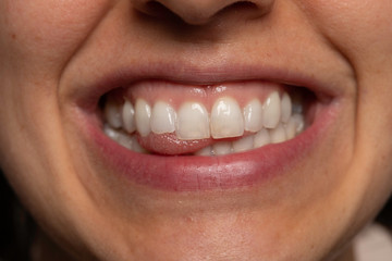 Smiling woman showing white teeth close up view Wall mural