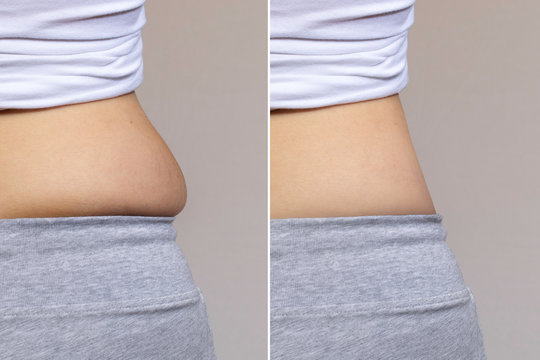 Slim and fat female side belly comparison