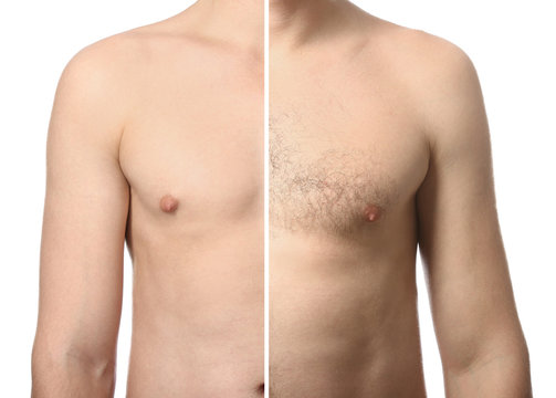 Young man before and after depilation on white background