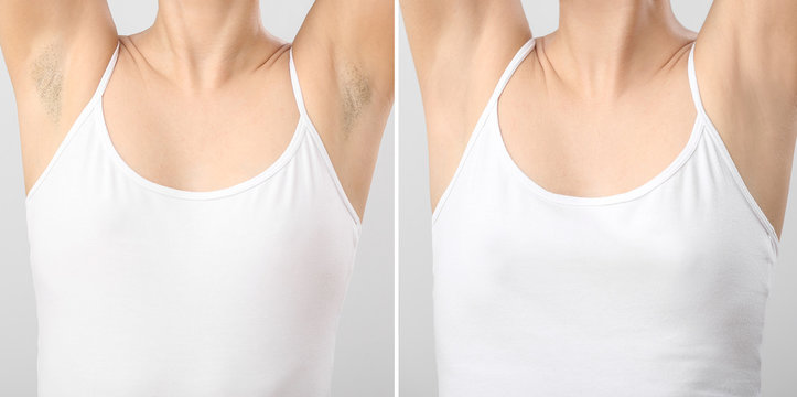 Young woman before and after armpits depilation on light background