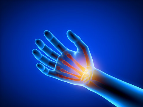 3d rendered medically accurate illustration of a man having a painful hand