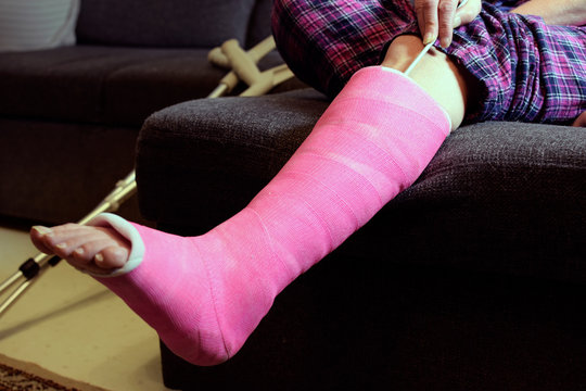 Foot itching under plaster cast. Woman scratching pink orthopedic cast with knitting needle. Space for text.