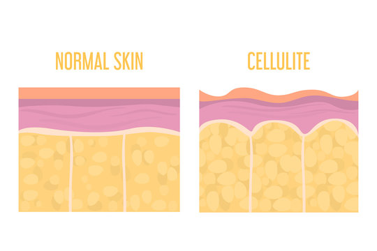 Cellulite skin and healthy skin anatomy. Fat tissue of human body