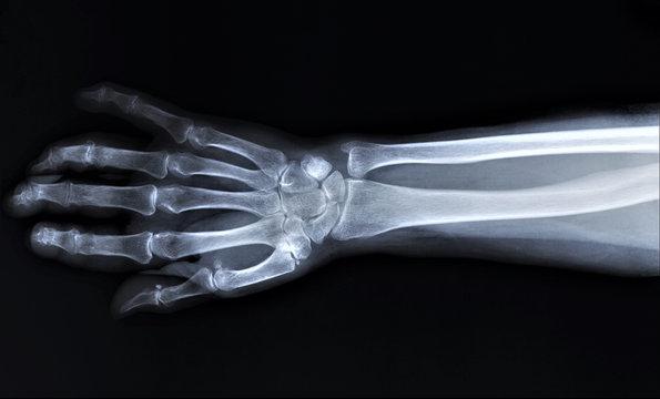 normal radiography of hand and wrist bones, traumatology and orthopedics, traumatology
