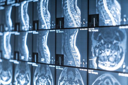 X-ray of the neck MRI. Vertebrae, osteochondrosis