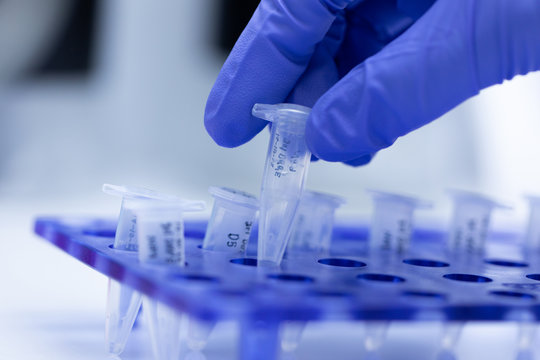Polymerase Chain Reaction (PCR) and Agarose gel electrophoresis is a method of gel electrophoresis used in biochemistry, molecular biology, genetics, and clinical chemistry in lab.