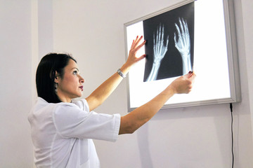Smart woman doctor check hand bones on x-ray image from machine.