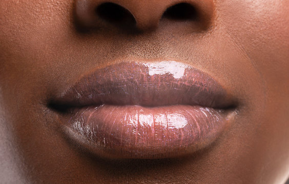 Perfect plump lips of black woman after filler injections