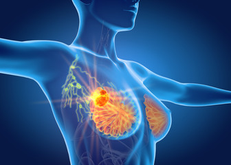 Breast cancer with lymphatics, medically 3D illustration