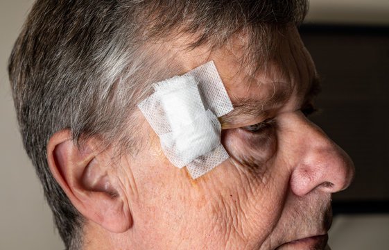 Senior adult male with dressings on surgery for removal of basal cell carcinoma caused by sun damage