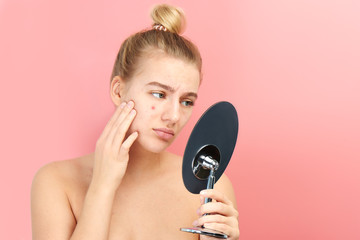 Upset girl looks in the mirror at her problem skin with red acne and post-acne isolated on a pink background