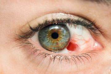 Hemorragia en ojo azul