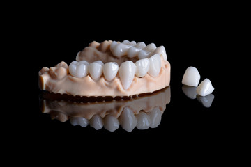 Close up of a dental model with veneers and crowns mounted on