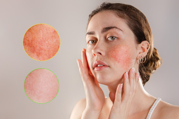 Medicine and cosmetology. Portrait of a young beautiful brunette woman with rosacea on her cheeks. Enlarged images of inflammation foci. Before and after