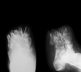 X-ray image of diabetic foot amputation,  oblique view