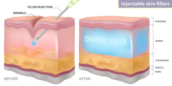 Injection filler injection under the skin, vector illustration