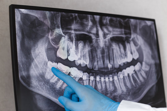 Doctor points wisdom tooth in dental x-ray.