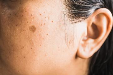 Asian woman has a mole