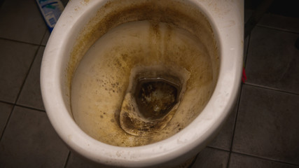 Why let your toilet look like this when you have bleach in your house?
