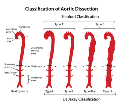 Classification of aortic dissection: Stanford, DeBakey. Healthy aorta with main parts labeled and aorta with various types of dissection. Vector illustration in flat style isolated on white background