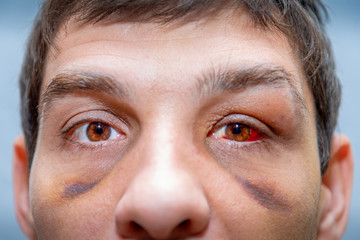 face of a white person with bruises under the eyes and an eye damaged with blood