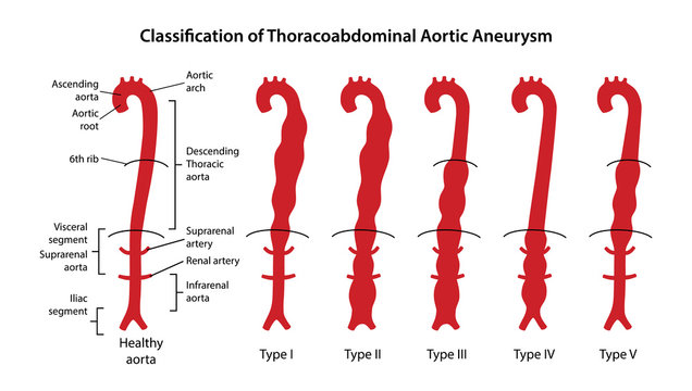 Classification of Thoracoabdominal Aortic Aneurysms. Healthy aorta with main parts labeled and aorta with various types of Thoracoabdominal aneurysm. Vector illustration in flat style
