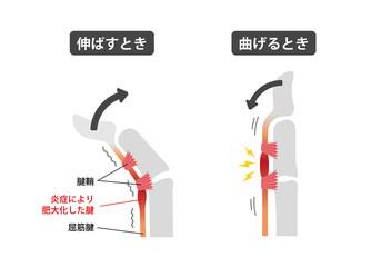 ばね指・バネ指 (弾撥指) / 原因と症状 骨格解剖図イラスト / 日本語