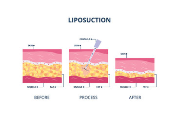 Suction-assisted liposuction procedure - skin layers vector illustration isolated.