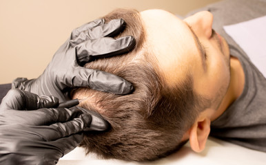Male trichopigmentation service. Young man laying on the back on the esthetician table. Master hands in a black gloves holding the permanent makeup machine with the needle and touching mans hair.