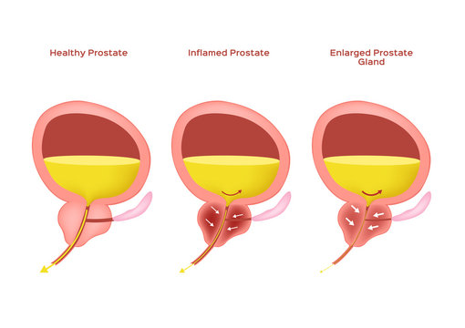 Inflamed prostate and Enlarged prostate gland / benign prostatic hyperplasia , bph vector
