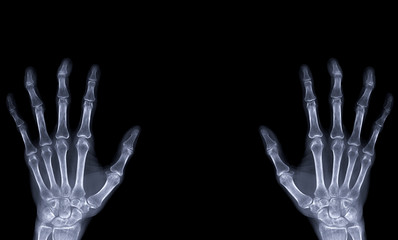xray image of both hand AP view isolated on black  background  for diagnostic rheumatoid.