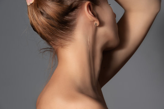 Woman with surgery scar at her neck.