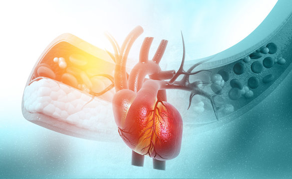 Cholesterol blocked artery with heart.3d illustration