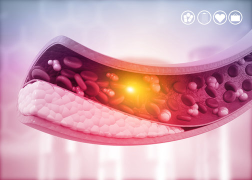 Atherosclerosis, Cholesterol plaque in artery. 3d illustration.