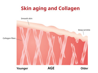Skin aging, Collagen in young and old skin,