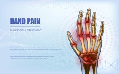Osteoarthritis rheumatoid arthritis hand sore joints concept