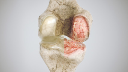 healthy knee and osteoarthritis knee in comparison - high degree of detail - 3D Rendering