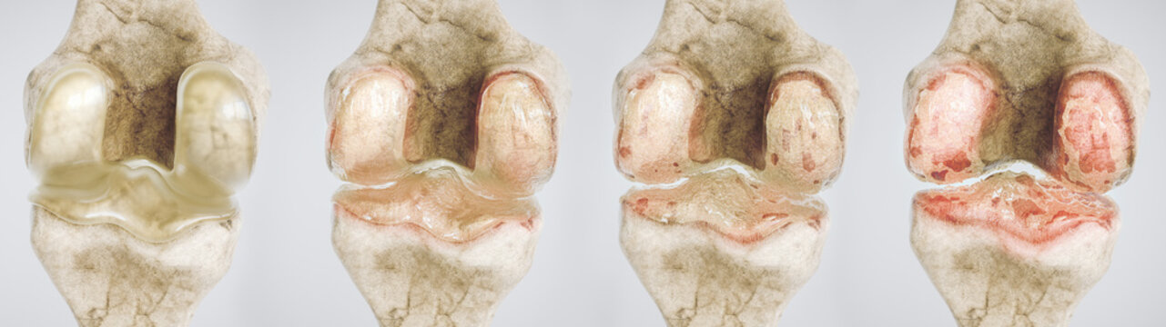 osteoarthritis of the knee in four stages - high degree of detail - 3D Rendering