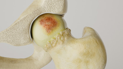 Stronger artheritis on the hip joint - high degree of detail - 3D Rendering