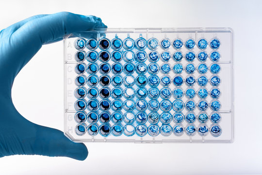 Researcher holding microplate for biomedical research /Scientist holding a 96 well plate with samples for biological analysis
