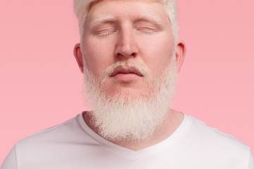 Calm adult albino man with closed eyes