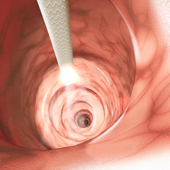 Internal view of the intestinal walls. Colonoscopy is the endoscopic examination of the large bowel and the distal part of the small bowel with a camera on a flexible tube. 3d render