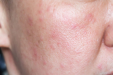 Allergy rash on the face