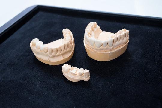 Ceramic teeth on a plaster model on a black background