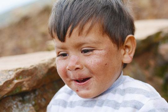 Happy little latin boy with damaged face skin.