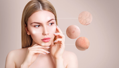 Magnifying circles demonstrate couperose and acne on face skin of young woman.
