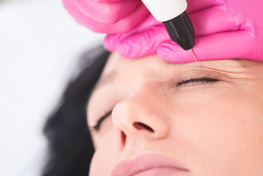 Cystic lesions, hyperpigmentation, palpebral ptosis, palpebrarum, plexr device, xanthelasma, blepharoplasty