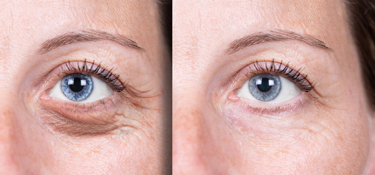 the effects of rejuvenating treatment in women with mature skin